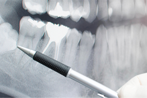 At Adelaide Hills Family Dental we perform safe and gentle tooth extractions with local anaesthetic.